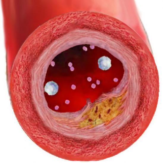 холестерин в крови симптомы