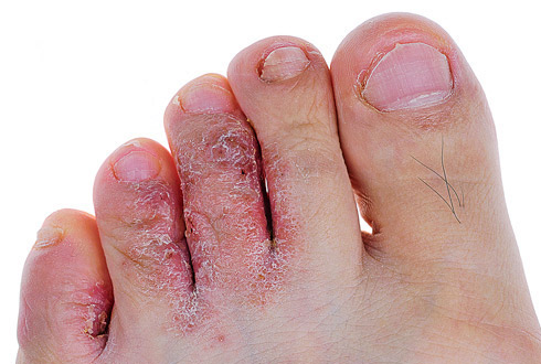 трещины на подушечках ног
