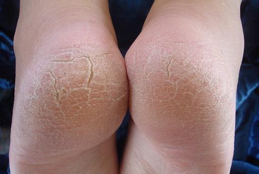 Скарлатина у детей на ногах фото