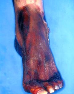 болезни при которых гниют ноги кроме диабета