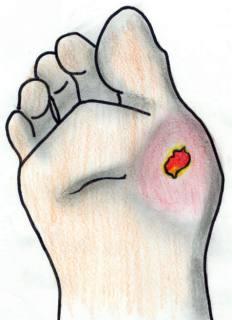 kakie-produkti-mozhno-pri-diabete-lechenie