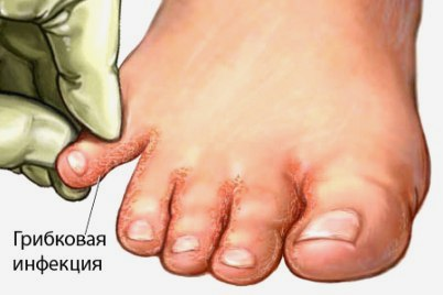 появилась трещина на пальце ноги