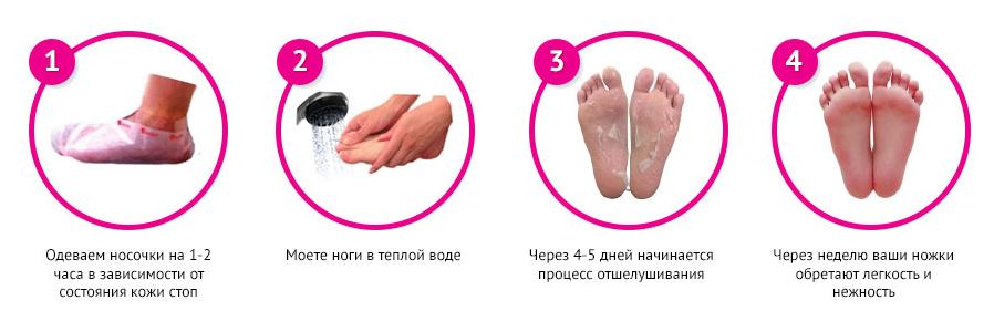 Носочки для пилинга инструкция