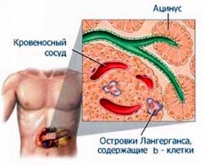 http://www.saharniy-diabet.com/userfiles/istoriya-saharnogo-diabeta-2-tip.jpg