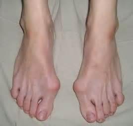 Как называется пластырь для косточки на ноге