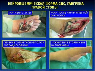 http://www.saharniy-diabet.com/userfiles/lechenie-gangreny-saharnyy-diabet.jpg