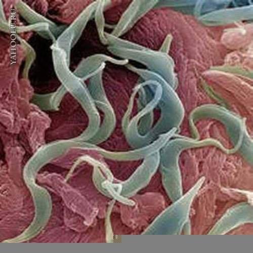 nabor-trav-o-parazitov