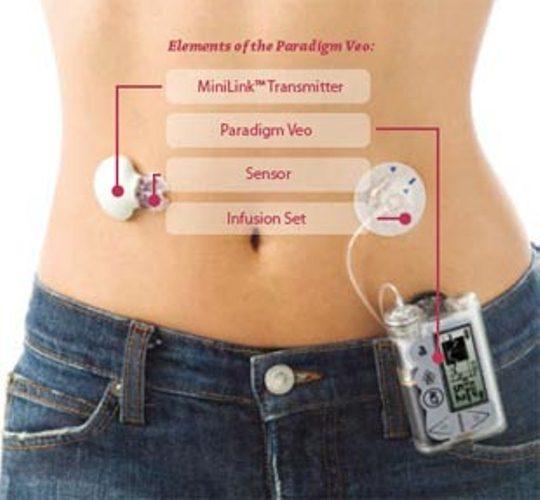 Как понять шкалу инсулинового шприца