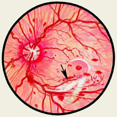 http://www.saharniy-diabet.com/userfiles/retinopatiya.jpg