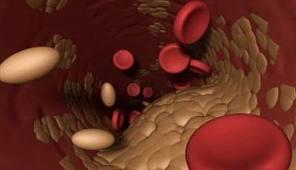 норма сахара холестерина в крови
