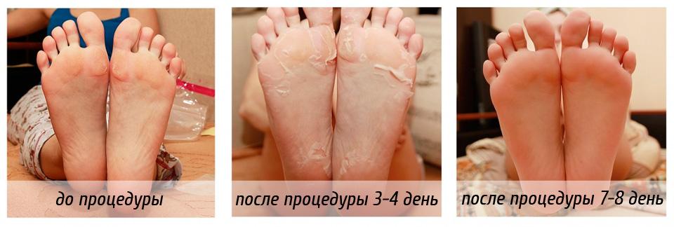 Баланопостит и покраснение полового члена при сахарном диабете