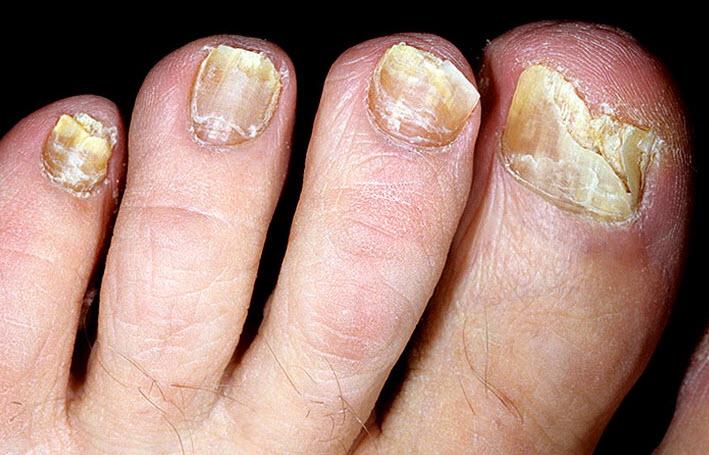 Стоп Актив - масло от грибка ногтей купить в Красноселькупе