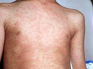 внезапная аллергия у взрослых